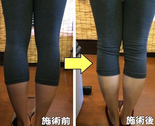 O脚改善施術前後比較画像