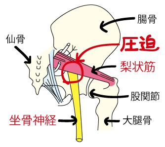 座骨神経痛のイラスト